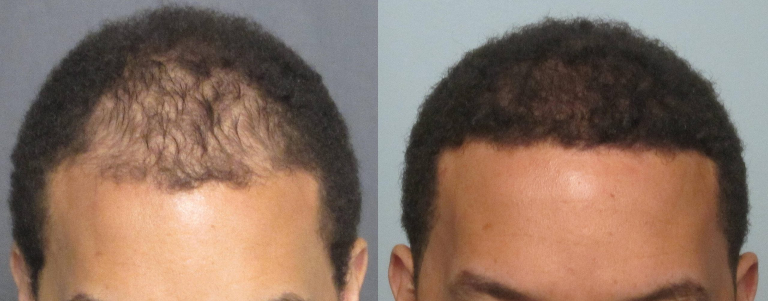 African American hair transplant of the frontal area. Dr. Behnam has the skill and the technicians to perform great job with curly hair.