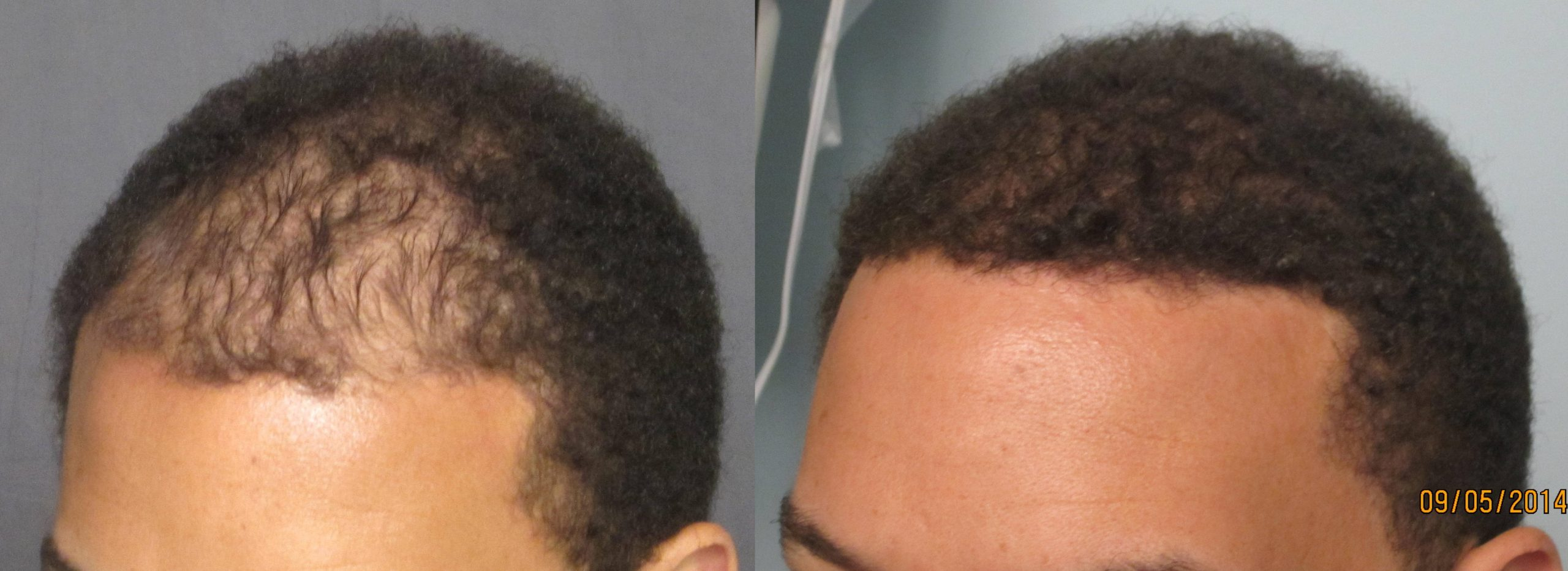 African American hair transplant of the frontal area. Dr. Behnam MD, ABHRS,