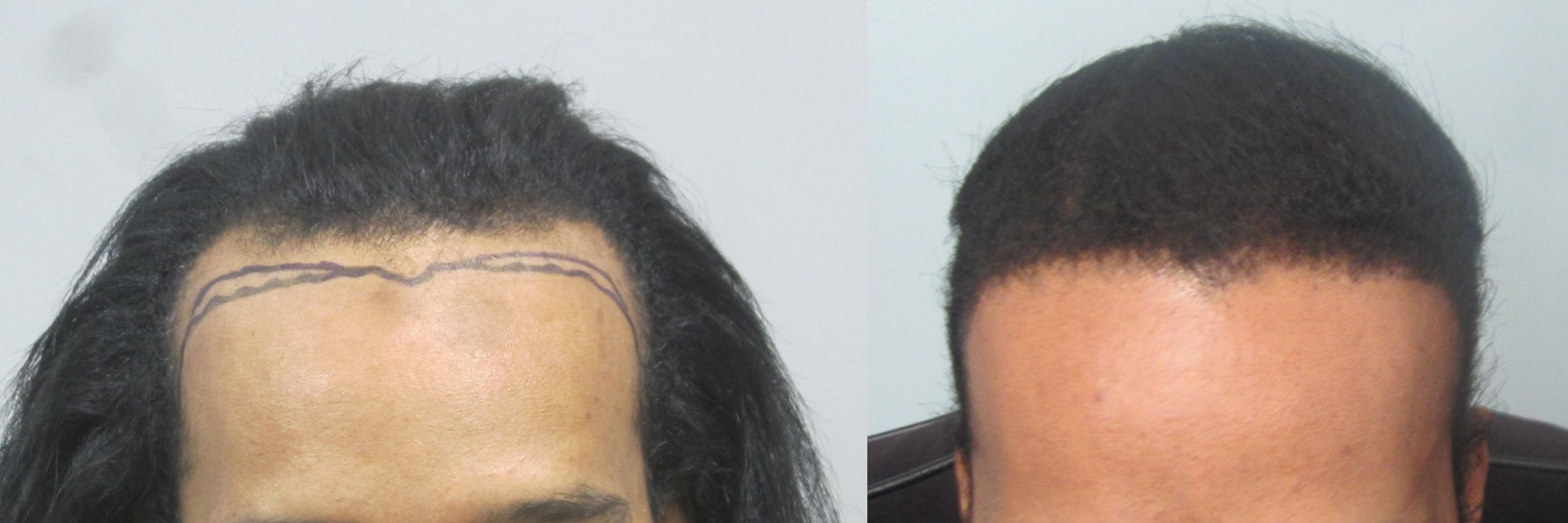 African American Hair Transplant: Frontal view. Dr. Behnam MD ABHRS specializes in African American and curly hair.