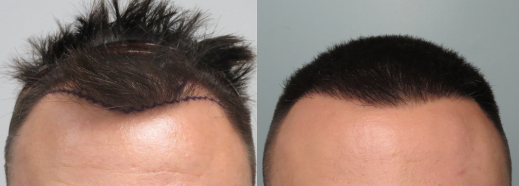 This patient received 1121 grafts on the hairline and temples to improve density and visible coverage of their hair. FUE procedure. Shown after 1 year of growth.