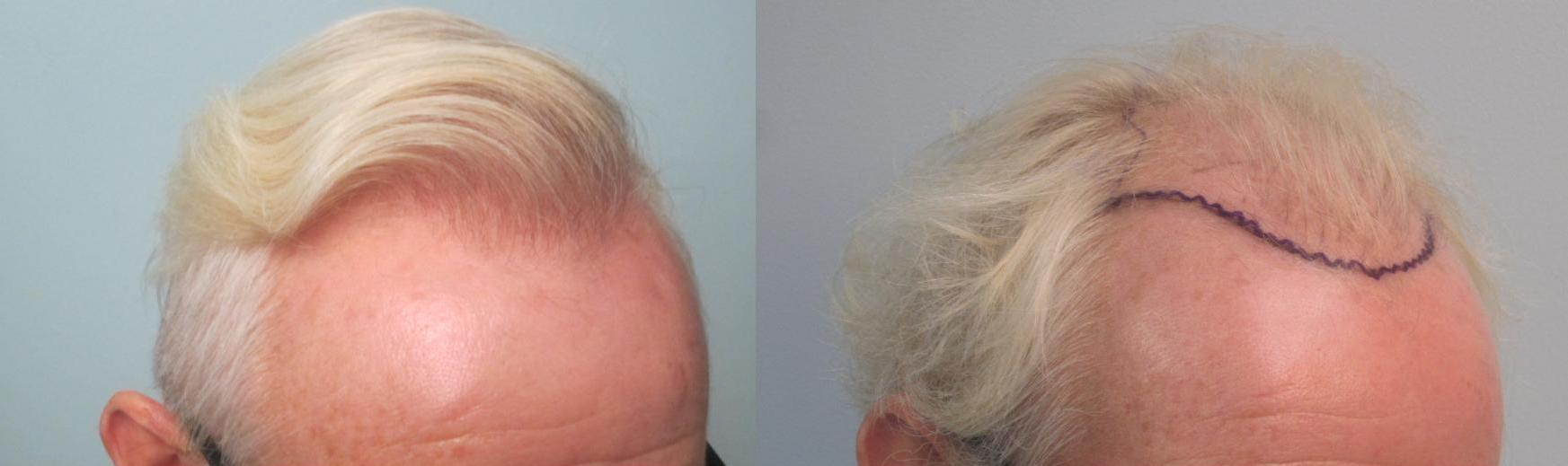 2,608 grafts placed from the frontal hairline till midscalp. Front closeup view. Patient had a prior hair transplant that looked pluggy and sparse and was repaired by Dr Sean Behnam. Please notice how natural and thick the hairline looks.