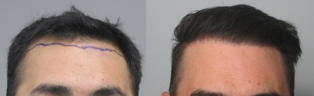 1,197 grafts added to the hairline using the FUE method. Procedure performed by Dr. Sean Behnam MD. Notice how natural the hairline is.