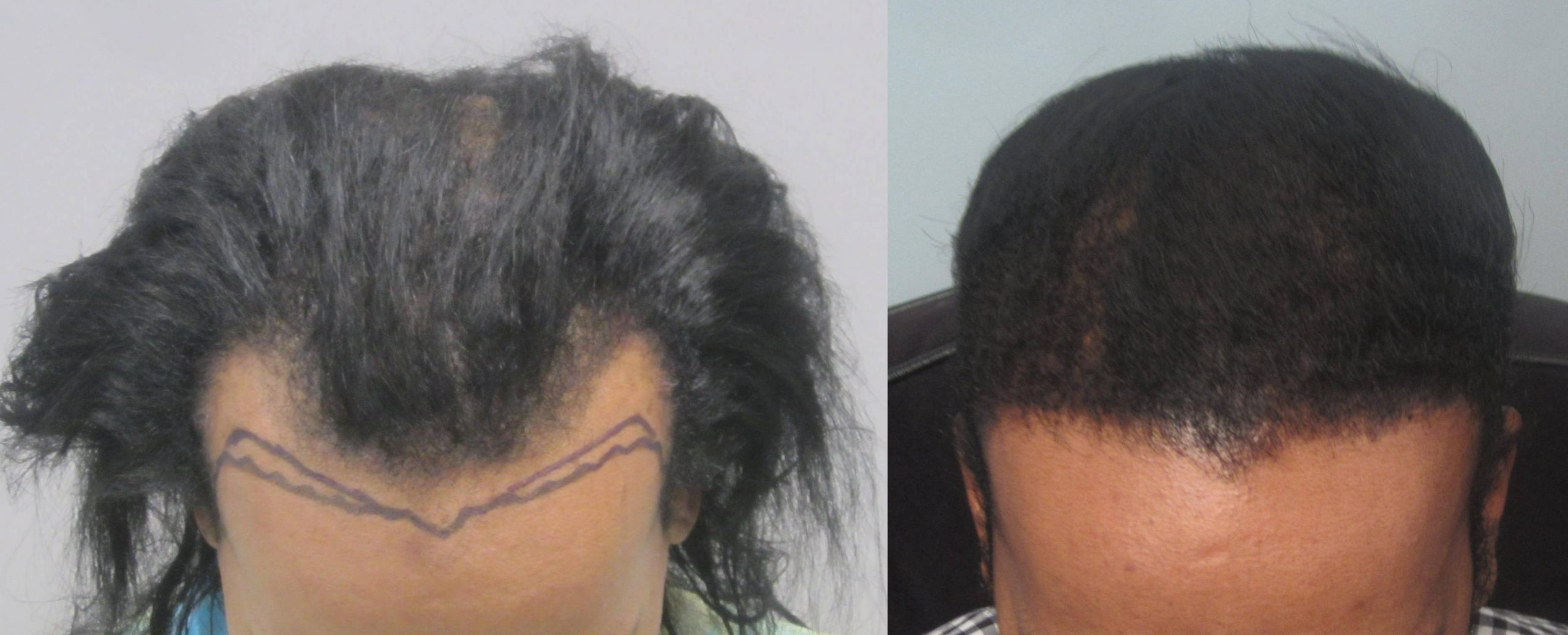 African American Hair restoration: top view. Dr. Behnam specializes in curly hair transplant.