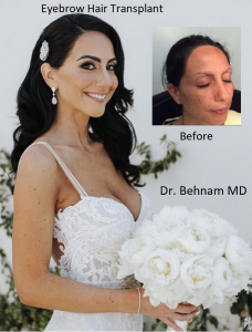 Eyebrow hair translpant surgery performed by Dr Sean Behnam