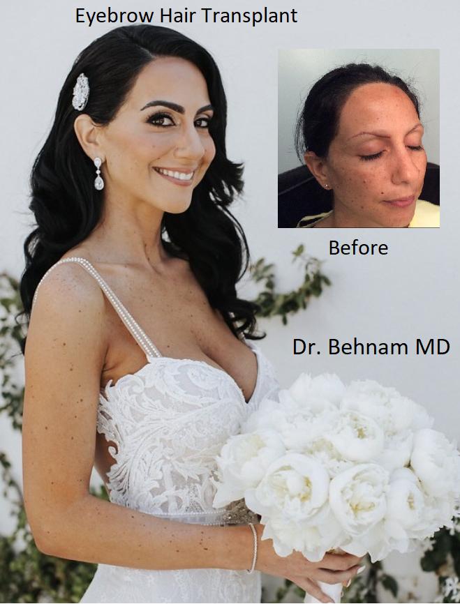 Eyebrow hair translpant surgery performed by Dr Sean Behnam