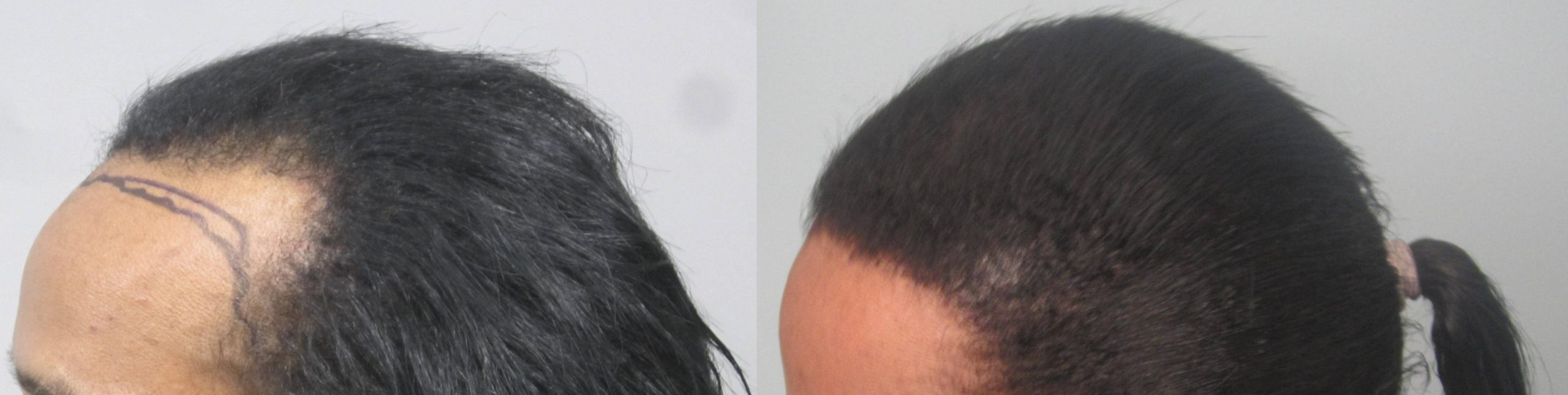 African American Hair Restoration: Dr. Behnam MD ABHRS specializes ethnic hair transplants.