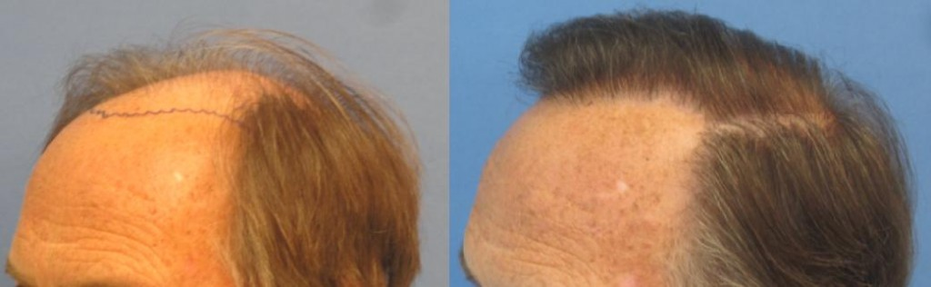 Before and after 2,256 grafts. Class 6. Side view. Notice how natural the hair transplant looks. By Dr Sean Behnam.