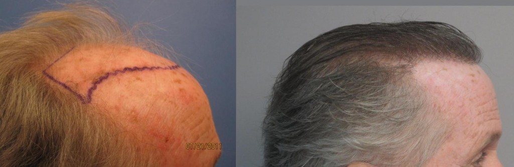 2,135 grafts placed in the hairline and the midscalp. Side view. Please notice how natural and dense the hairline looks. Class 6. By Dr. Sean Behnam.