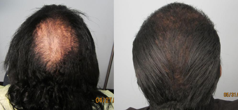 African American Hair Transplant: Crown view. Dr. Behnam MD ABHRS specializes in curly hair and ethnic hair transplants.