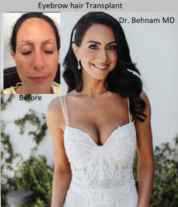 Eyebrow Hair Transplant surgery performed by Dr. Behnam