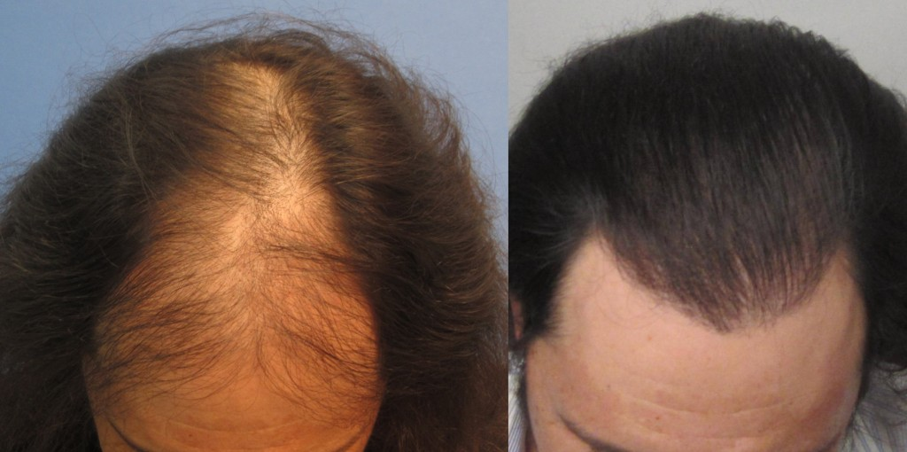 1634 grafts placed at the hairline and midscalp. Top view. By Dr Sean Behnam
