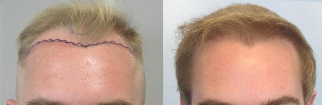 FUE hair transplant, Front view: 1,103 grafts placed at the hairline. Please note the density of the hair and the naturalness. FUE by Dr Sean Behanm MD.