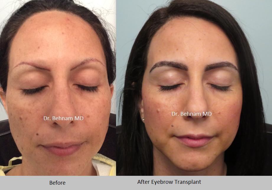 Eyebrow Transplant Los Angeles - Eyebrow Restoration | Dr ...