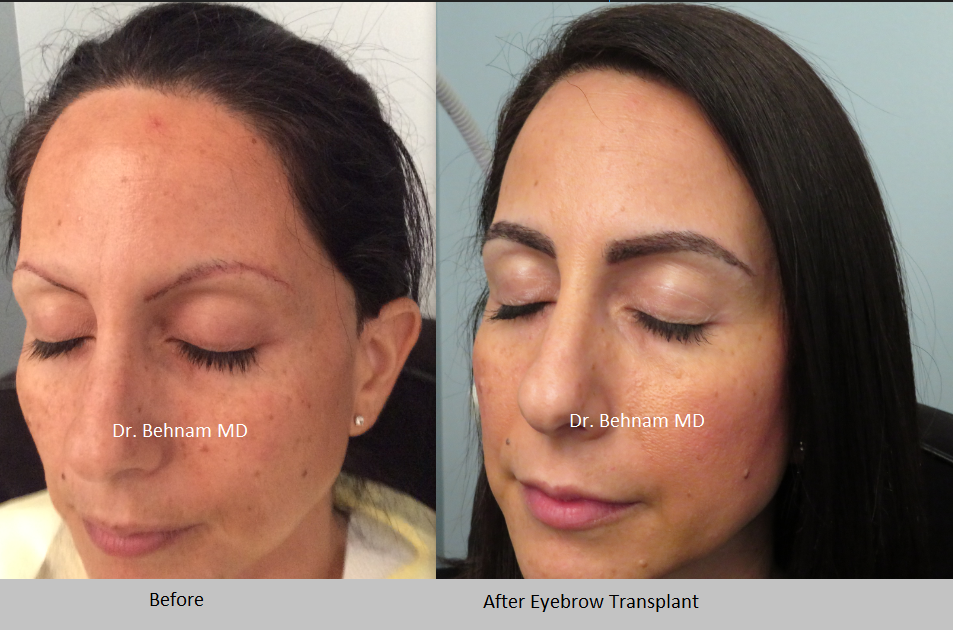 Eyebrow Transplant Los Angeles