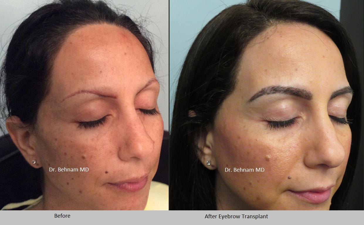 Eyebrow transplant in Los Angeles