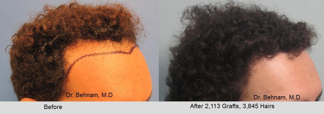 Men african american hair transplant