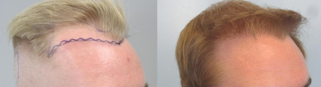 FUE hair transplant, side view 1,103 grafts placed at the hairline. Please note the density of the hair and the naturalness. FUE by Dr Sean Behanm MD. FUE hair transplant,