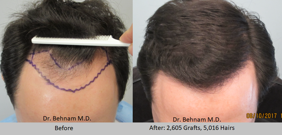 Man or male before and after hair transplantation