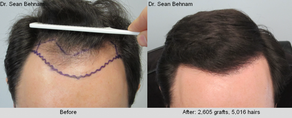 Patient received 2605 grafts (5016 hairs) via an FUE transplant. Results are shown after 1 year.
