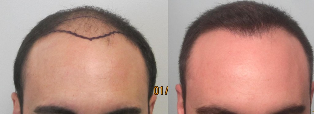 952 grafts FUE at the hairline. By Dr Sean Bhenam MD