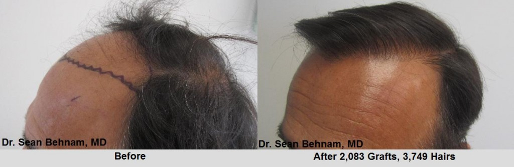 2,083 grafts placed at the hairline and midscalp. Dr Behnam MD.