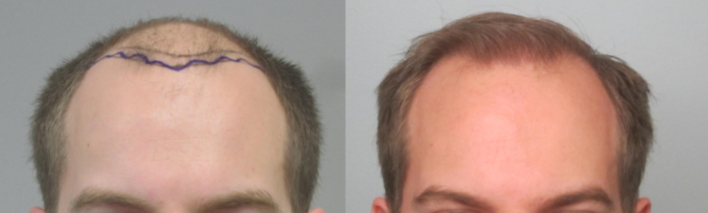 2,247 Grafts placed at athe hairline and midscalp in one session. Results demonstarte greater than 95% graft survival. By Dr Sean Behnam MD