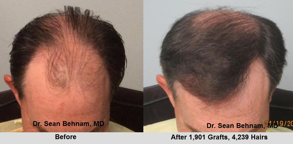 FUE front and midscalp ( not crown) Using the FUE hair transplantation method, 1,901 hair grafts were individually extracted and placed in the hairline and midscalp. Side view. Photos demonstrate high hair transplant graft survival rate with FUE hair transplant similar to the strip hair transplant procedure.