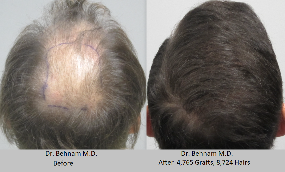 Man before and after hair restoration