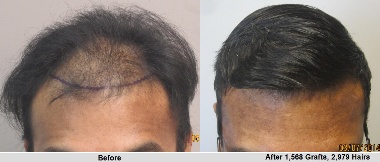 Before and after 1500 hair grafts