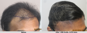 Before and after 1560 hair grafts