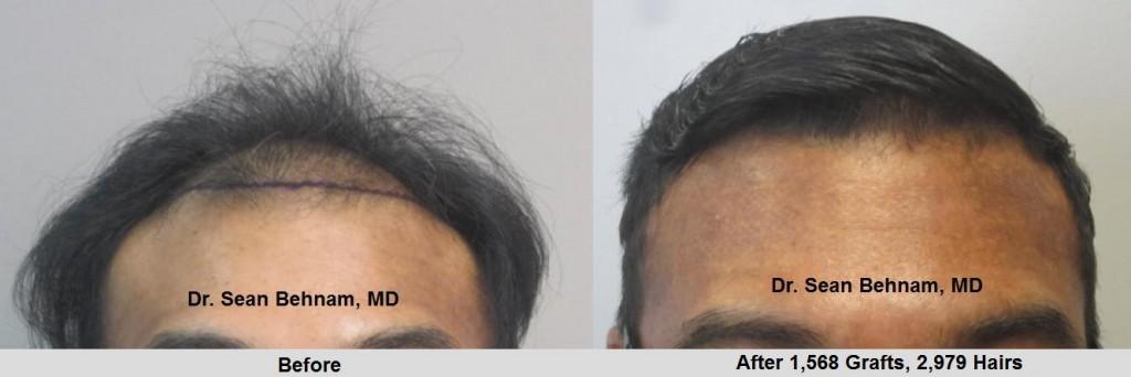Class 3 thinning: Before and after 1,568 grafts placed in the hairline. Procedure performed by Dr. Sean Behnam MD.