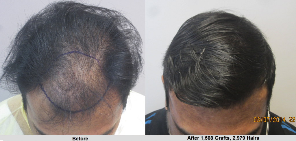 Before and after 1566 hair grafts