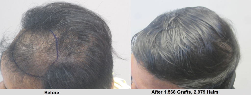 Before and after 1568 hair grafts