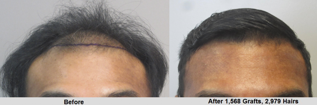 Before and after 1600 hair grafts