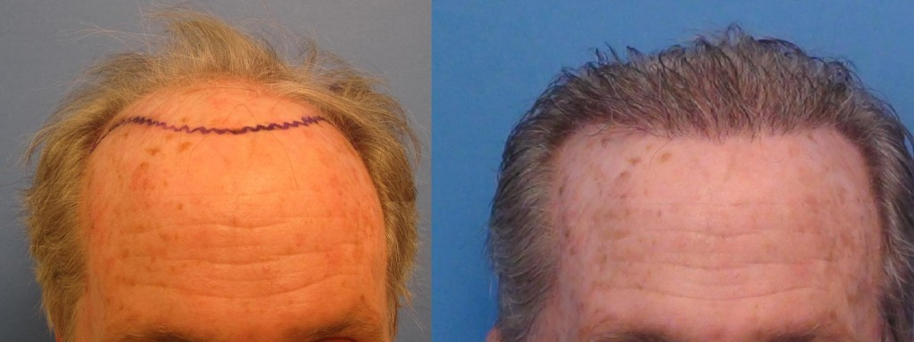 This gentleman had 2,135 gtafts placed in the hairline and the top midscalp. Results are after one session. Class 6. Procedure performed by Dr. Sean Bhenam.