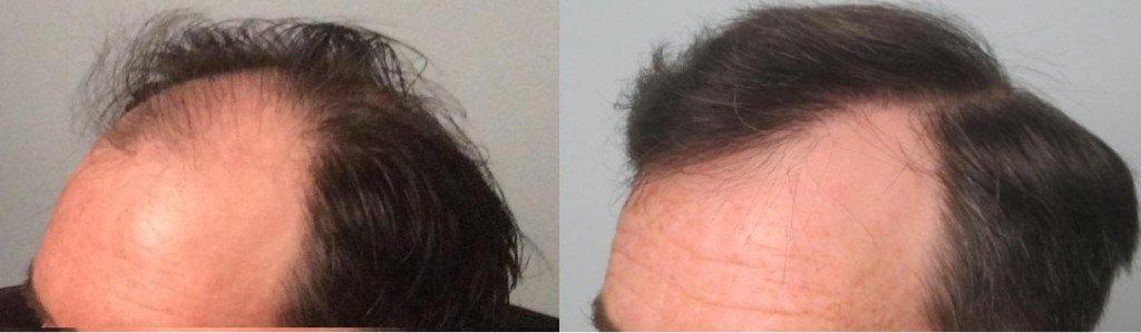 Using the FUE method, 1,901 grafts were individually extracted and placed in the hairline and midscalp.