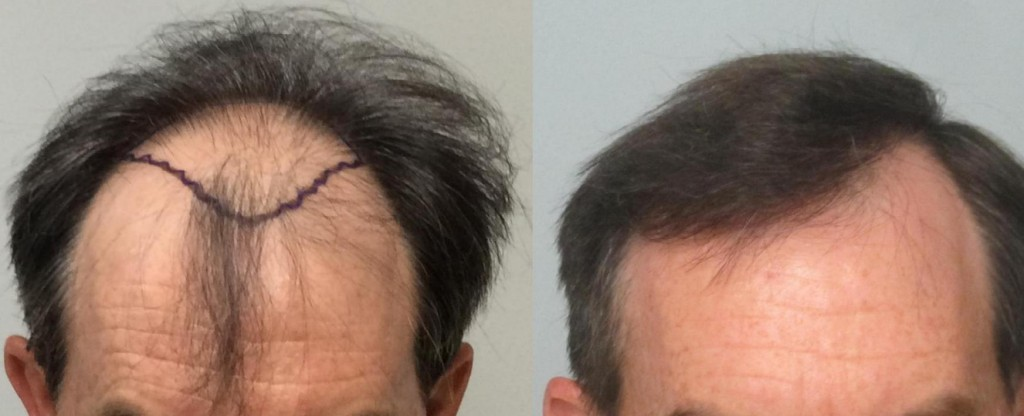Using the FUE method, 1,901 grafts were individually extracted