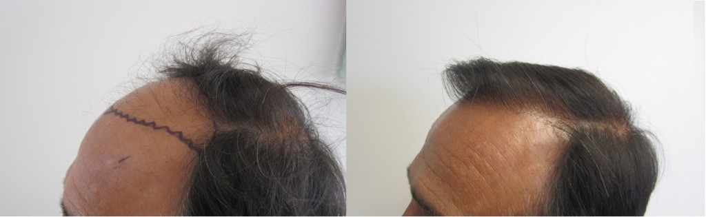 Class 4. Left Side view. 2,000 grafts. One session only. Please pay attention to how natural the hairline is. hair transplant is an art, especially the hairline creation.