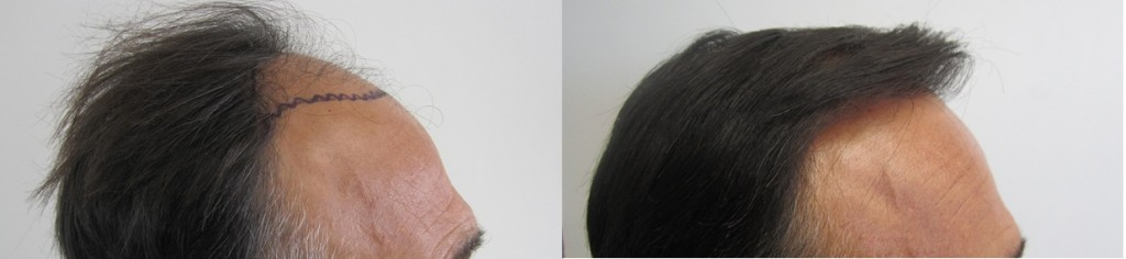 Class 4. Right side view. Before and after 2,000 grafts.