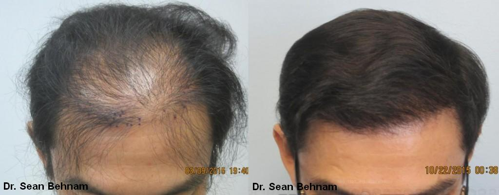 Top view: After 2,054 hair grafts placed by FUE hair transplant method. Increased density achieved after one session of FUE hair transplants.