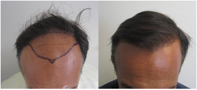Hair replacement fue neograft strip comparison
