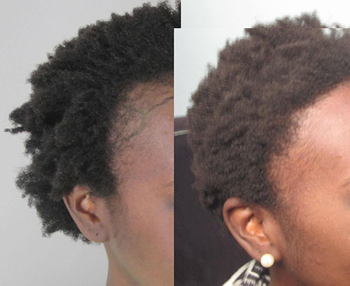 Before and after 1,465 grafts placed at the hairline and temples. Procedure performed by Dr. Sean Behnam.