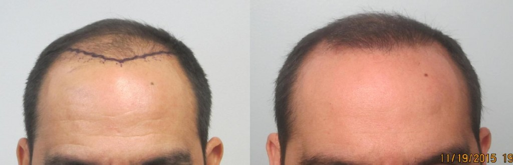 This gentleman had 1,905 grafts placed in the hairline and midscalp using the FUE method. Procedure performed by Dr Sean Behnam. Please look how natural the hairline looks . It frames the face very well. The results show the high percentage graft survival and growth.