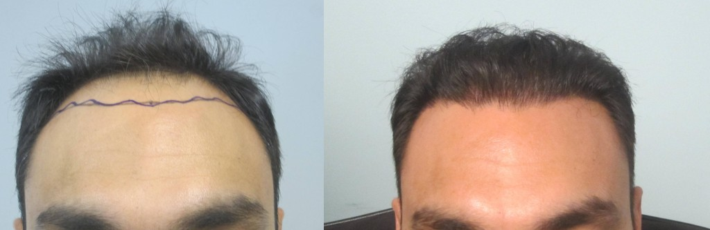 This gentleman had 2,045 grafts placed in the hairline and midscalp. Results are after one procedure. Procedure performed by Dr. Sean Behnam.