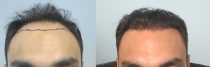 Hair restoration cost los angeles