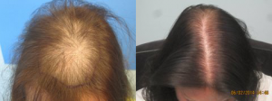 This woman had 1935 grafts placed in the frontal and midscalp area. All grafts were performed in just one session. Procedure performed by Dr Sean Behnam.