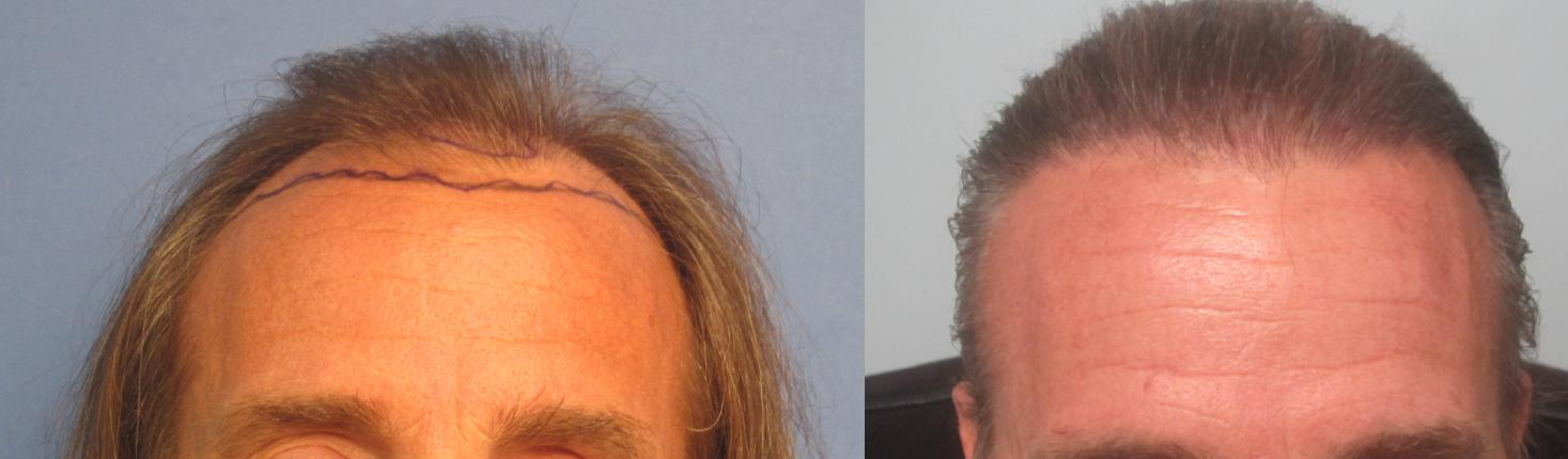 2,145 grafts placed at the hairline and midscalp. front view. By Dr Sean Behnam.