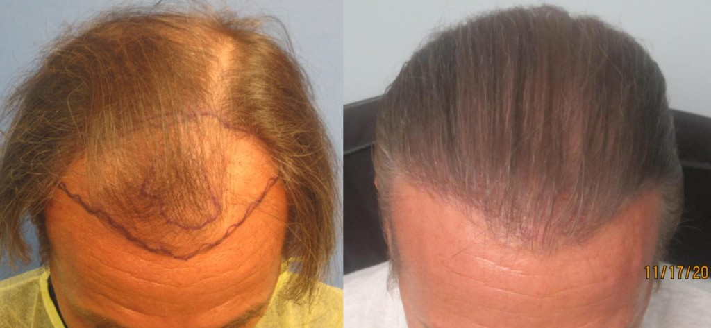 2,145 grafts placed at the hairline and midscalp. Top view. By Dr Sean Behnam.