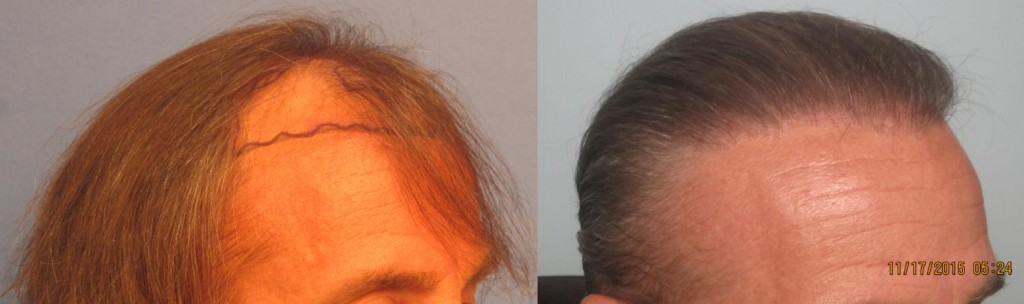 2,145 grafts placed at the hairline and midscalp. Side view. By Dr Sean Behnam.