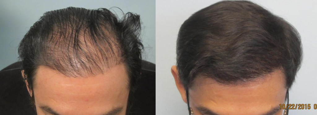 Top view: After 2,054 grafts placed by FUE method. Procedure performed by Dr. Sean Behnam. Increased density achieved after one session of FUE.